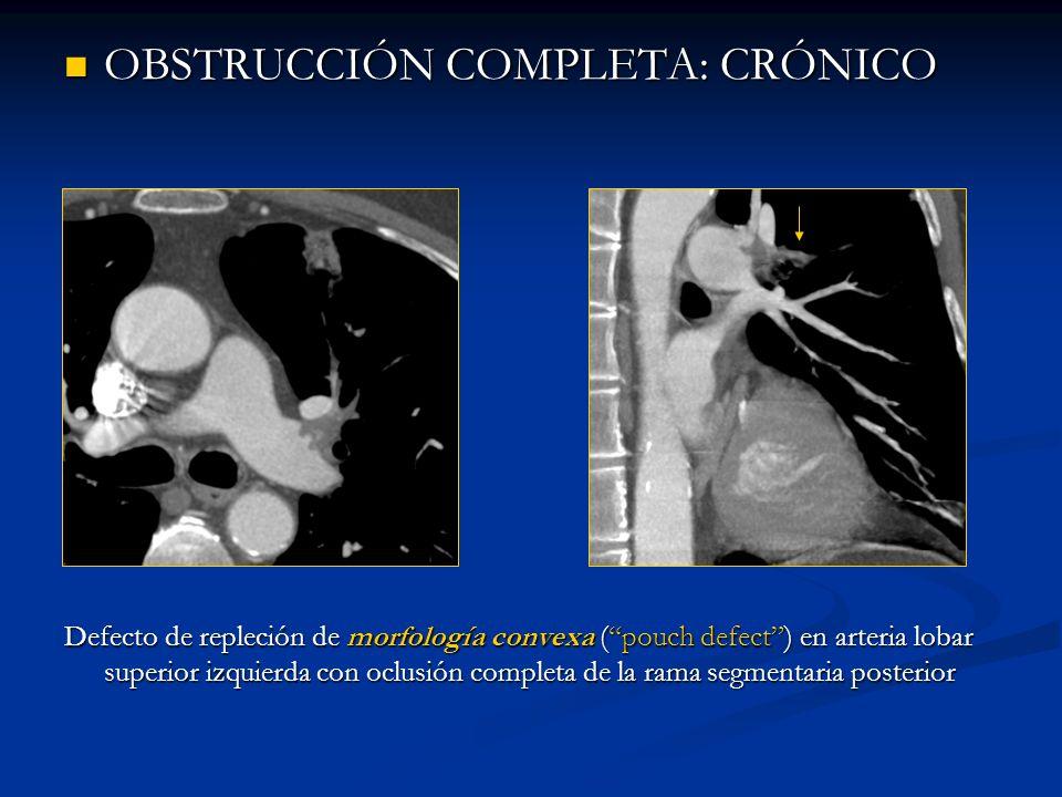 OBSTRUCCIÓN COMPLETA: CRÓNICO OBSTRUCCIÓN COMPLETA: CRÓNICO Defecto de repleción de morfología convexa (pouch defect) en arteria lobar superior izquie