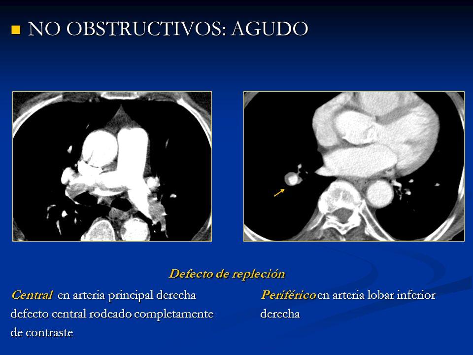 NO OBSTRUCTIVOS: CRÓNICO NO OBSTRUCTIVOS: CRÓNICO Irregularidades de la superficie deLas bandas y redes en TEPc se orientan en la íntima en arteria pulmonar principal dirección del flujo a lo largo del eje axial derecha ( )de los vasos derecha ( trombo crónico excéntrico )de los vasos