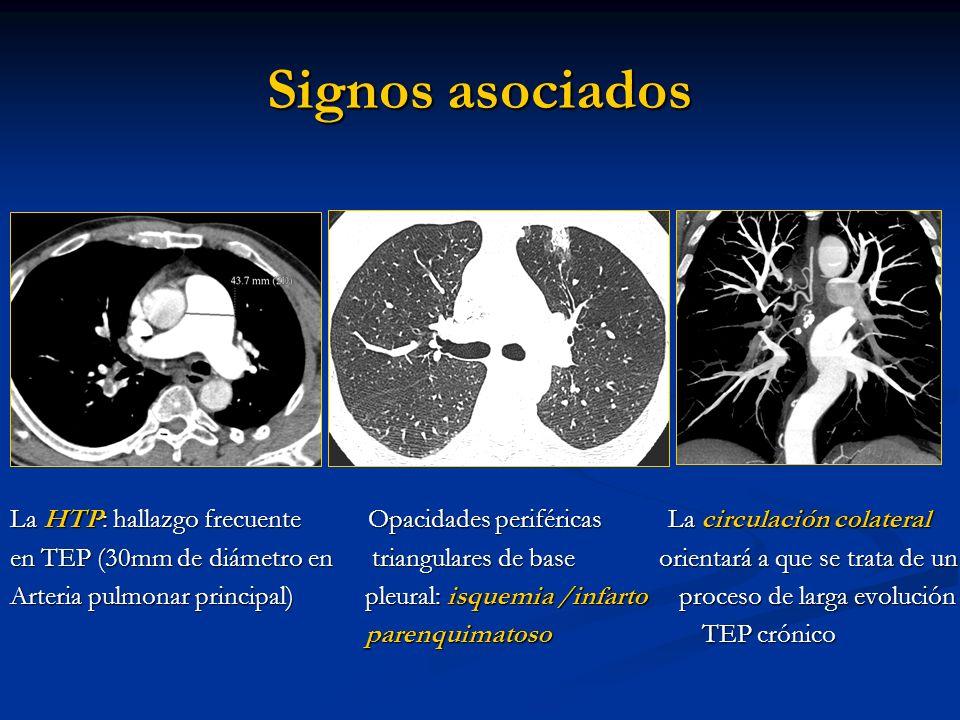 Conclusiones Mediante la angioTC de arterias pulmonares podemos diagnosticar y diferenciar un TEP crónico de un TEP agudo ayudando a enfocar el manejo terapéutico Mediante la angioTC de arterias pulmonares podemos diagnosticar y diferenciar un TEP crónico de un TEP agudo ayudando a enfocar el manejo terapéutico El TEP crónico es una causa tratable de hipertensión pulmonar que tradicionalmente se ha infradiagnosticado, por lo que es importante reconocer sus características radiológicas El TEP crónico es una causa tratable de hipertensión pulmonar que tradicionalmente se ha infradiagnosticado, por lo que es importante reconocer sus características radiológicas