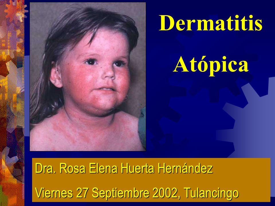 DERMATITIS ATOPICA Es una enfermedad crónica inflamatoria de la piel que ocurre principalmente en niños con antecedentes de atopia INP