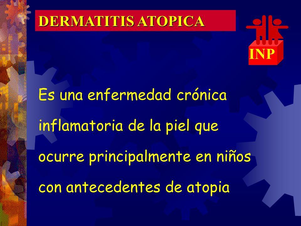 ¿Dermatitis atópica unilateral? Tiña facial