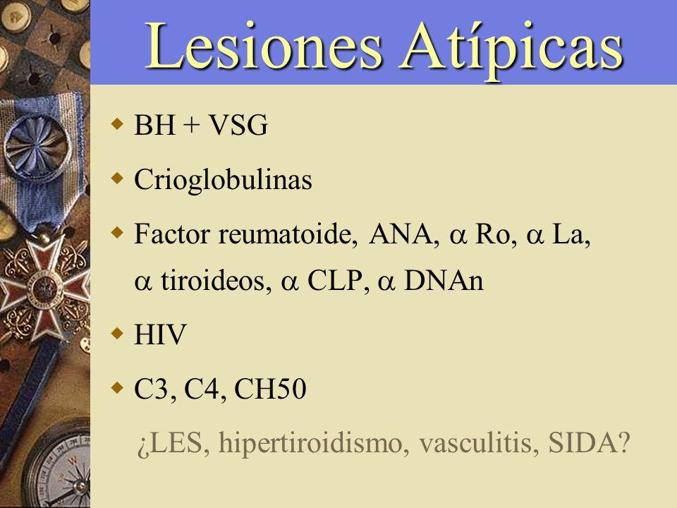 BH + VSG Crioglobulinas Factor reumatoide, ANA, Ro, La, tiroideos, CLP, DNAn HIV C3, C4, CH50 ¿LES, hipertiroidismo, vasculitis, SIDA? Lesiones Atípic