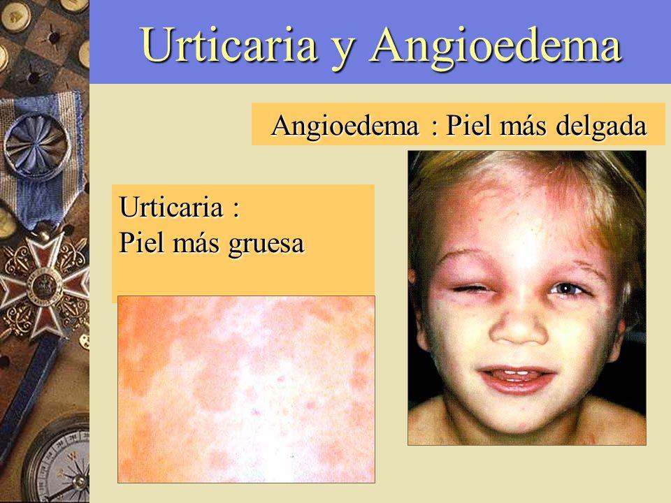 Urticaria y Angioedema Angioedema : Piel más delgada Urticaria : Piel más gruesa