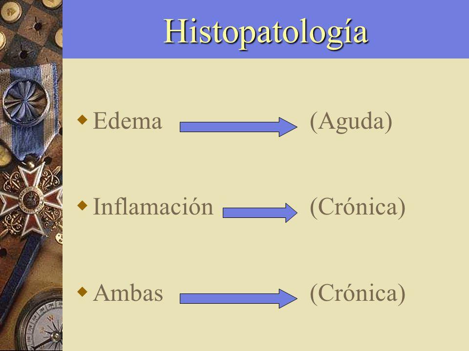 Urticaria crónica Linfocitos T 50 % Monocitos 25 % Células Cebadas 15 % Eosinófilos 10 %