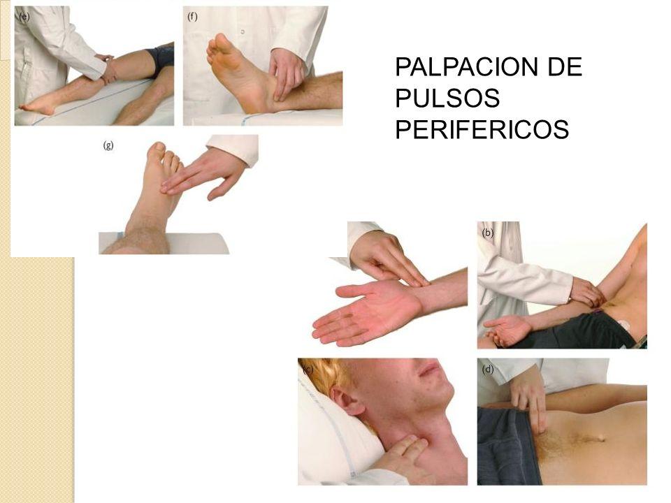 PALPACION DE PULSOS PERIFERICOS