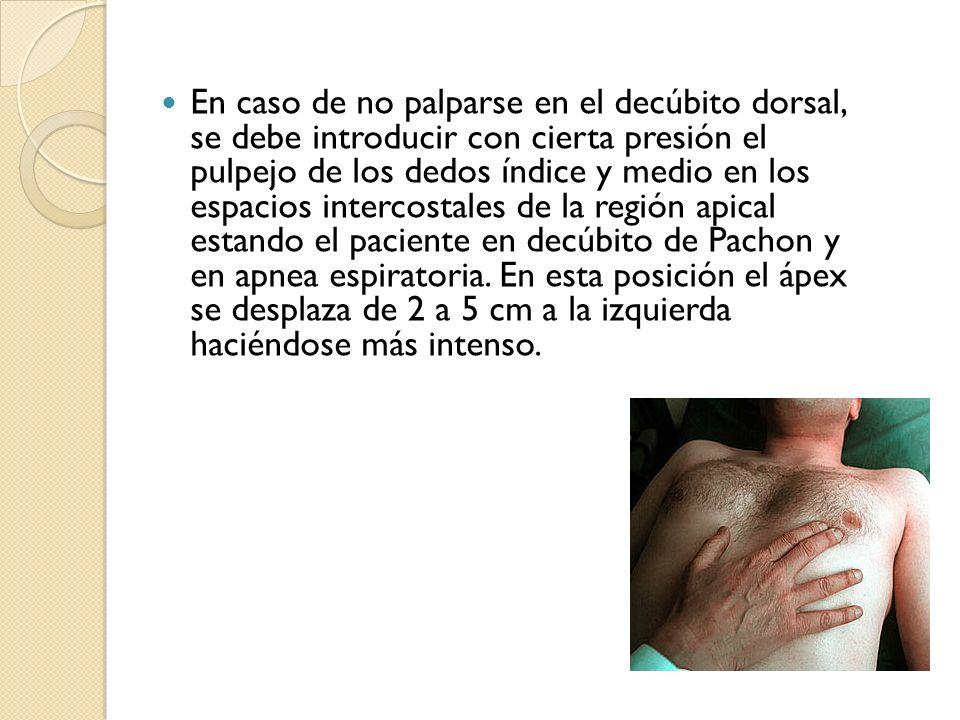 En caso de no palparse en el decúbito dorsal, se debe introducir con cierta presión el pulpejo de los dedos índice y medio en los espacios intercostal