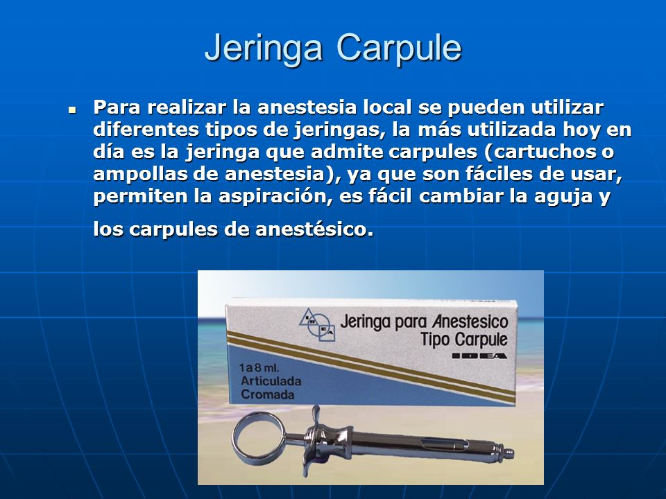 Jeringa Carpule Para realizar la anestesia local se pueden utilizar diferentes tipos de jeringas, la más utilizada hoy en día es la jeringa que admite