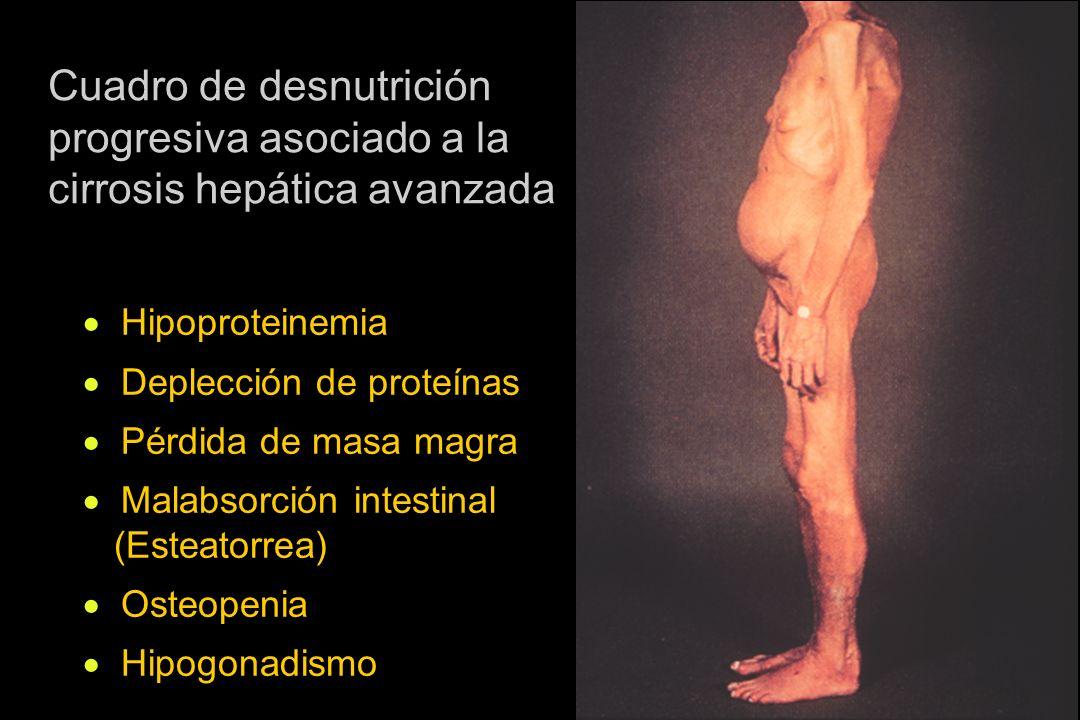 GH (-) IGF- I Desnutrición progresiva ? ¿factor causal del proceso de desnutrición? Cirrosis hepática, condición de deficiencia de IGF-I