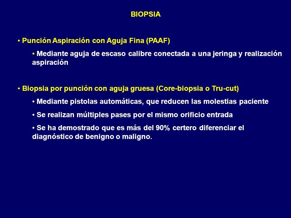BIOPSIA Punción Aspiración con Aguja Fina (PAAF) Mediante aguja de escaso calibre conectada a una jeringa y realización aspiración Biopsia por punción
