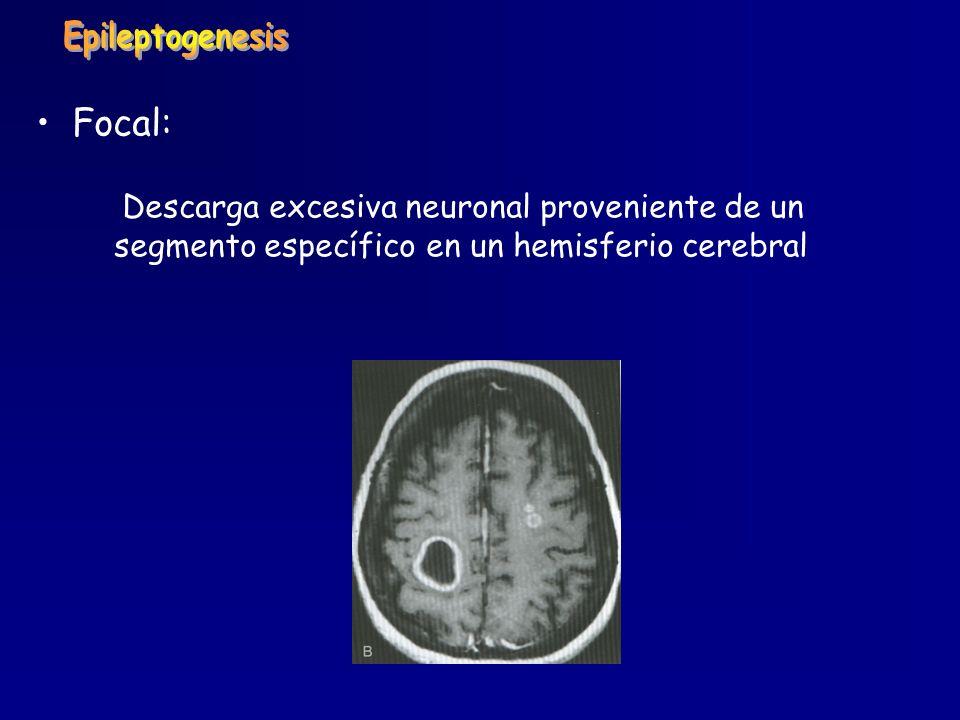 Focal: Descarga excesiva neuronal proveniente de un segmento específico en un hemisferio cerebral