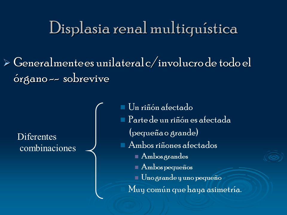 Displasia renal multiquística Generalmente es unilateral c/involucro de todo el órgano -- sobrevive Generalmente es unilateral c/involucro de todo el