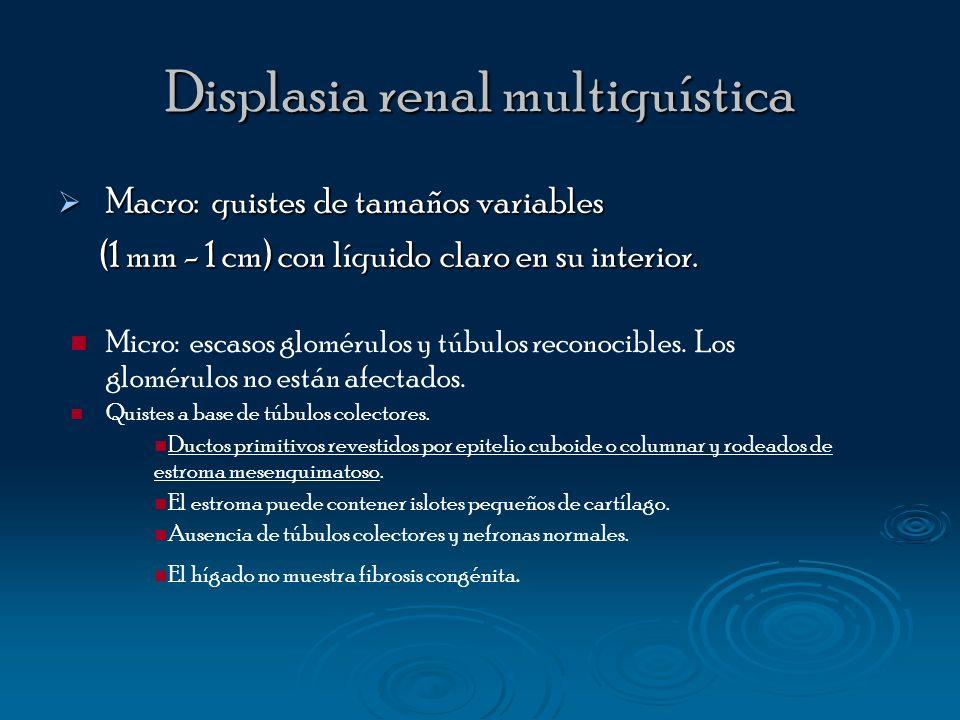 Displasia renal multiquística Macro: quistes de tamaños variables Macro: quistes de tamaños variables (1 mm - 1 cm) con líquido claro en su interior.