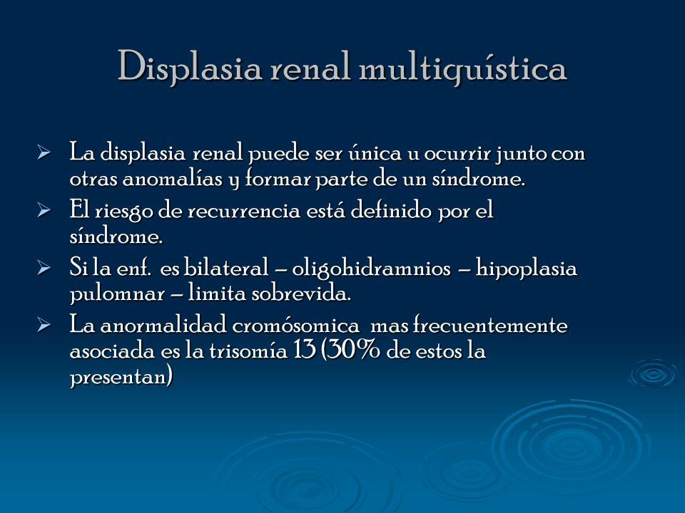 Displasia renal multiquística La displasia renal puede ser única u ocurrir junto con otras anomalías y formar parte de un síndrome. La displasia renal