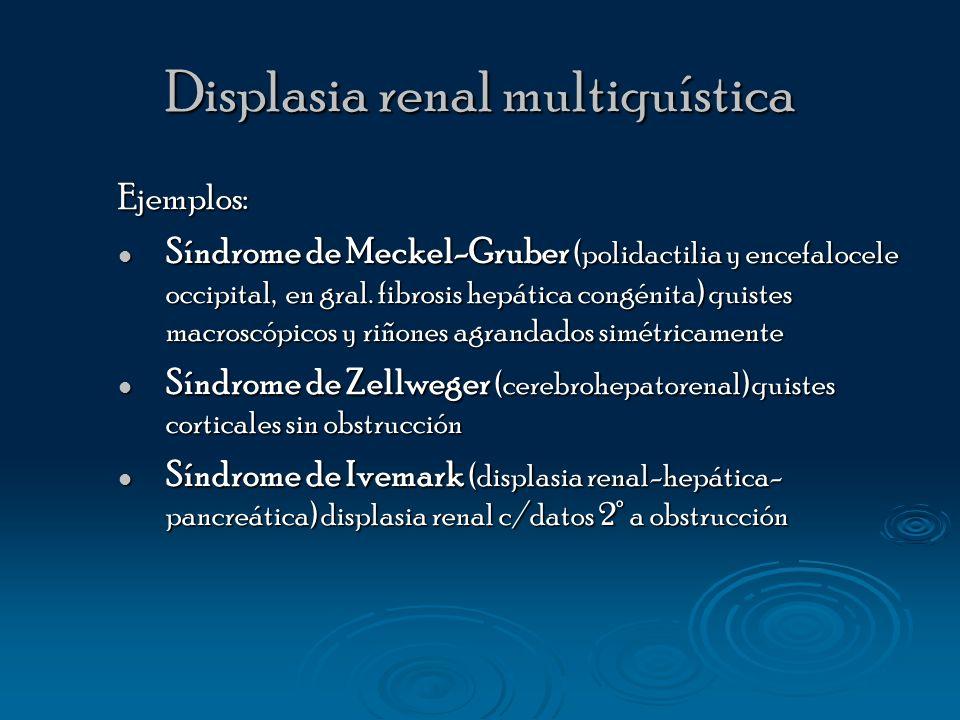 Displasia renal multiquística Ejemplos: Síndrome de Meckel-Gruber (polidactilia y encefalocele occipital, en gral. fibrosis hepática congénita) quiste