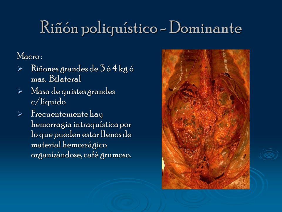 Riñón poliquístico - Dominante Macro : Riñones grandes de 3 ó 4 kg ó mas. Bilateral Riñones grandes de 3 ó 4 kg ó mas. Bilateral Masa de quistes grand