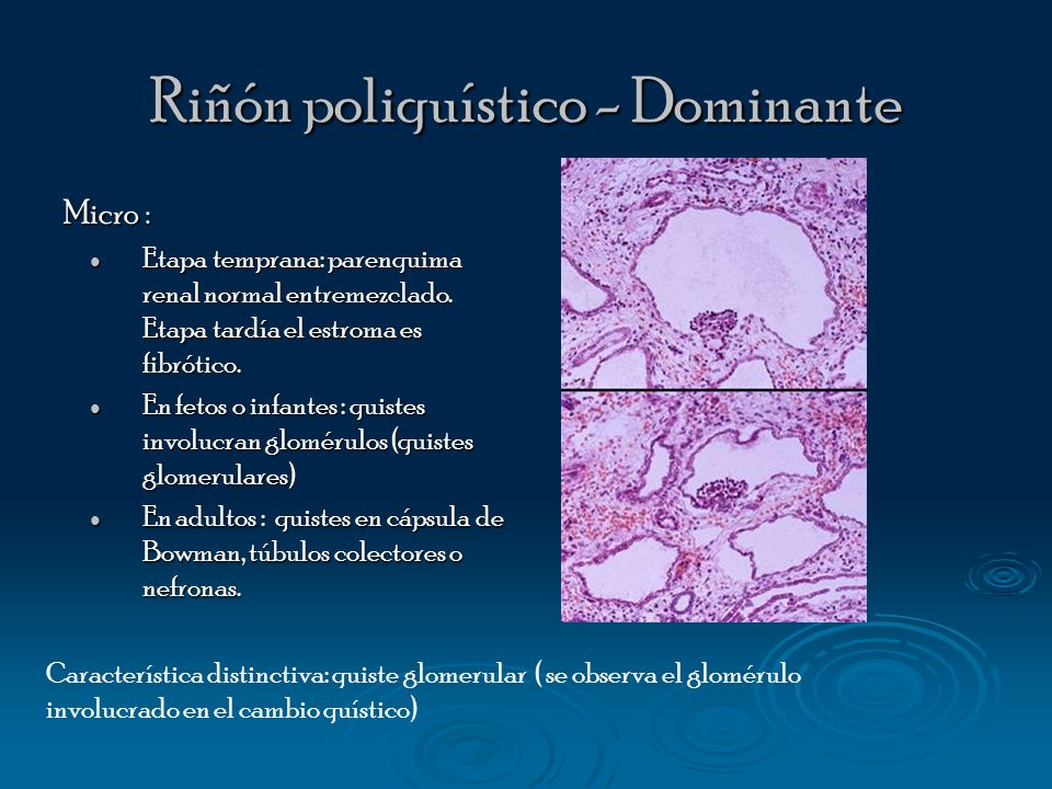 Riñón poliquístico - Dominante Micro : Etapa temprana: parenquima renal normal entremezclado. Etapa tardía el estroma es fibrótico. Etapa temprana: pa