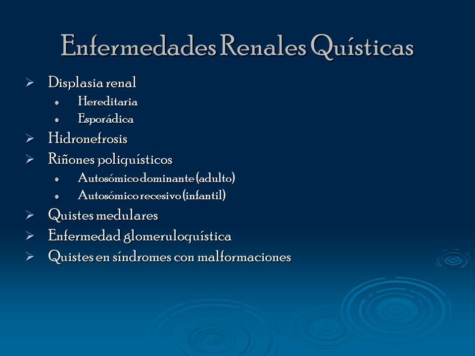 Enfermedades Renales Quísticas Displasia renal Displasia renal Hereditaria Hereditaria Esporádica Esporádica Hidronefrosis Hidronefrosis Riñones poliq