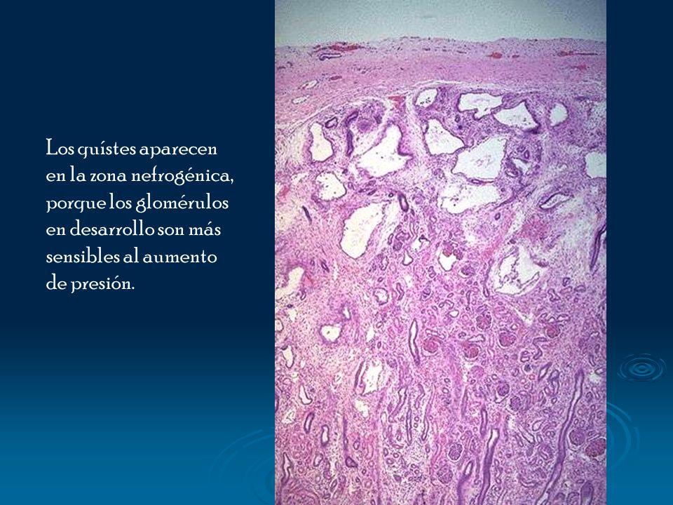 Los quístes aparecen en la zona nefrogénica, porque los glomérulos en desarrollo son más sensibles al aumento de presión.