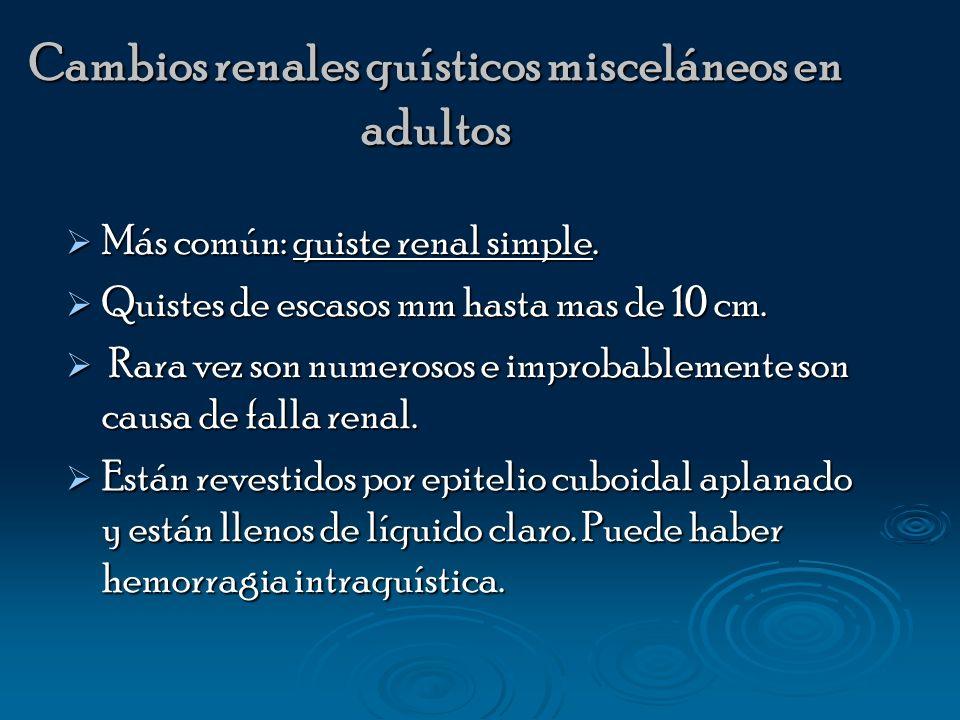 Cambios renales quísticos misceláneos en adultos Más común: quiste renal simple. Más común: quiste renal simple. Quistes de escasos mm hasta mas de 10
