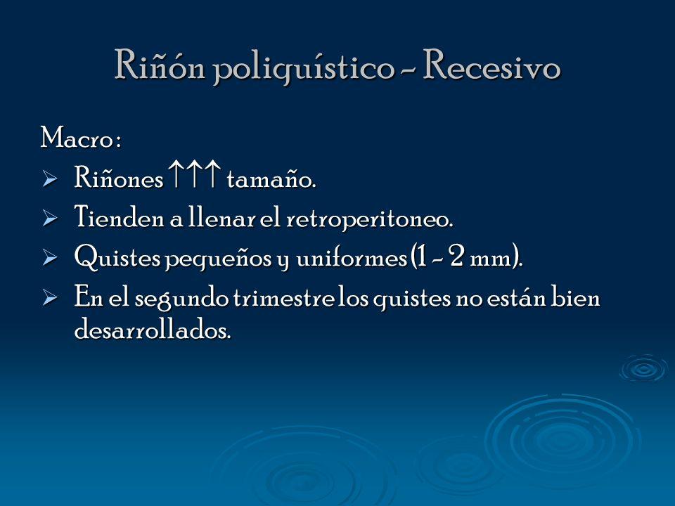 Riñón poliquístico - Dominante Tipo III en la clasificación de Potter.