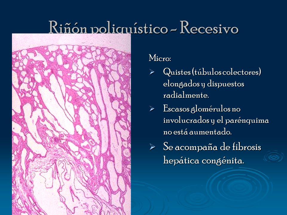 Fibrosis hepática congénita.