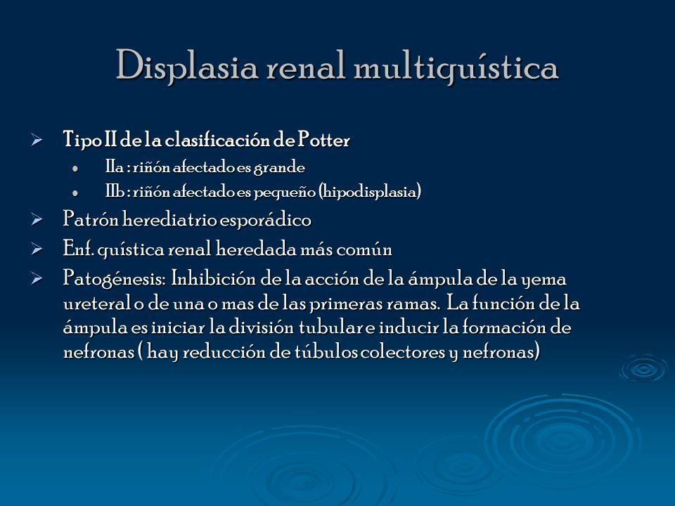 Displasia renal multiquística Tipo II de la clasificación de Potter Tipo II de la clasificación de Potter IIa : riñón afectado es grande IIa : riñón a