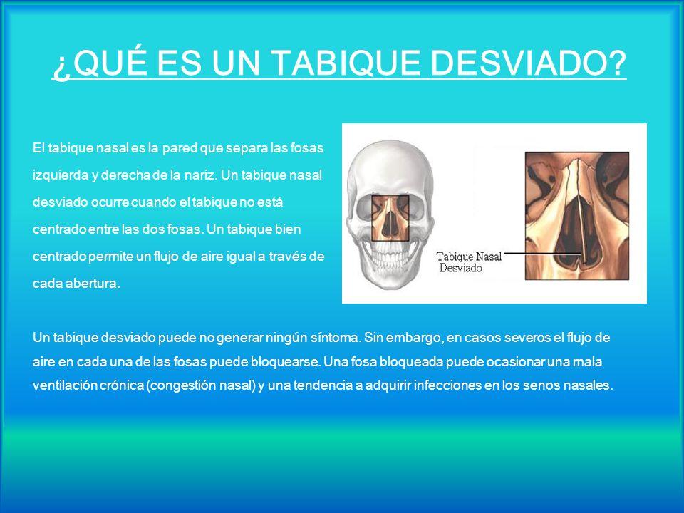 ¿QUÉ ES UN TABIQUE DESVIADO? El tabique nasal es la pared que separa las fosas izquierda y derecha de la nariz. Un tabique nasal desviado ocurre cuand