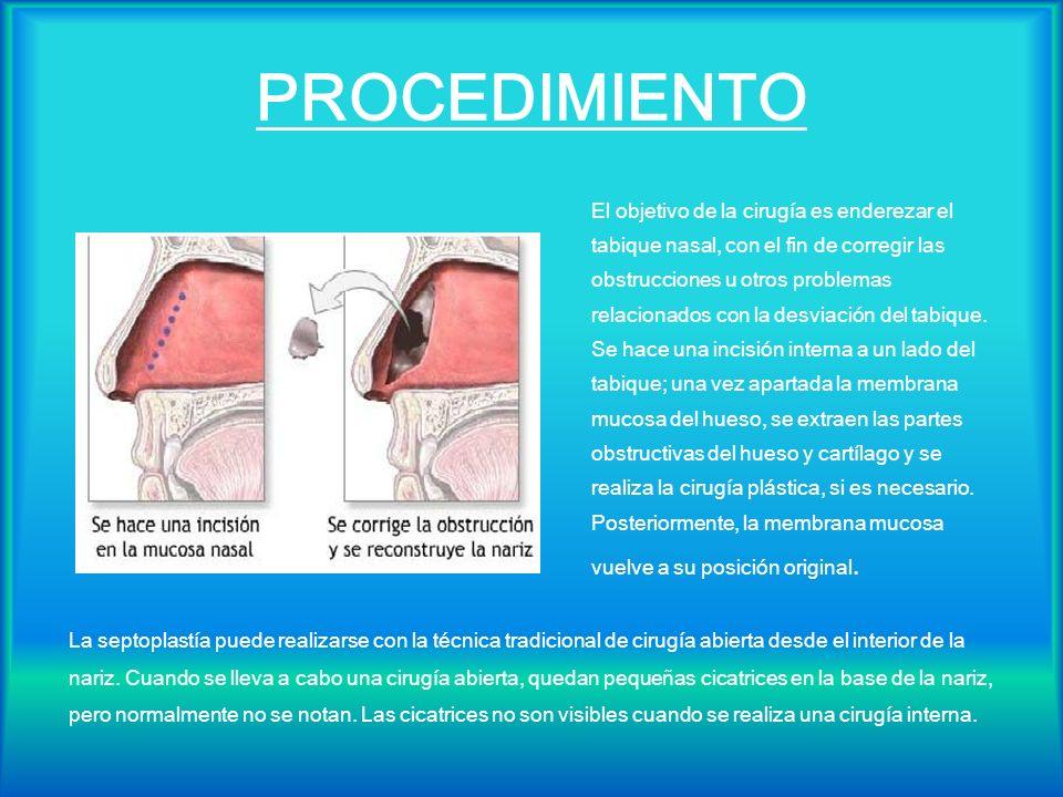 PROCEDIMIENTO El objetivo de la cirugía es enderezar el tabique nasal, con el fin de corregir las obstrucciones u otros problemas relacionados con la