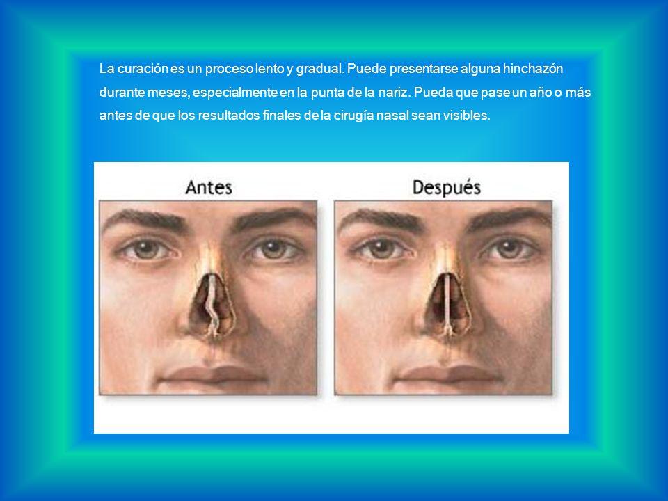 La curación es un proceso lento y gradual. Puede presentarse alguna hinchazón durante meses, especialmente en la punta de la nariz. Pueda que pase un