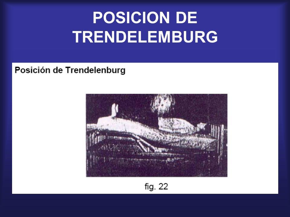 POSICION DE TRENDELEMBURG