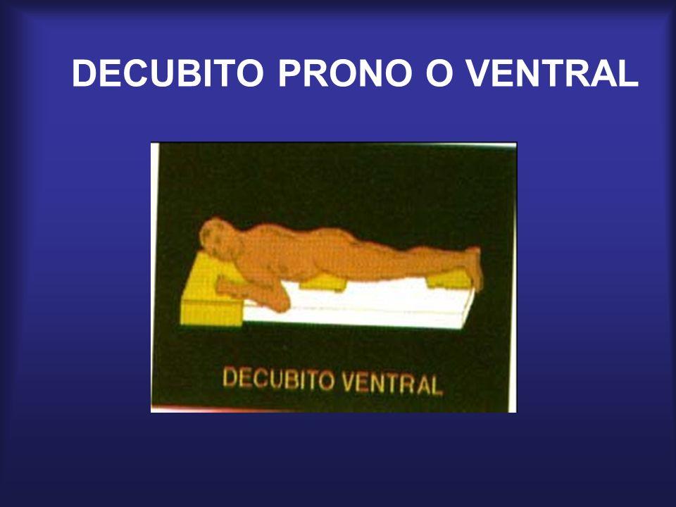 DECUBITO PRONO O VENTRAL