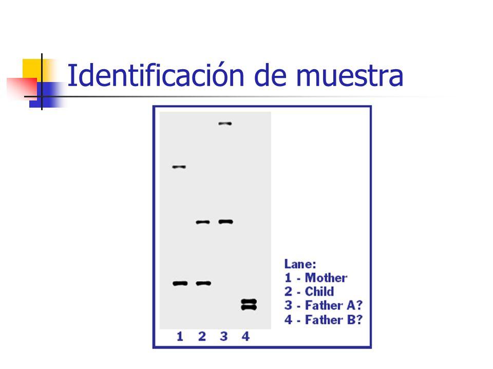 Identificación de muestra