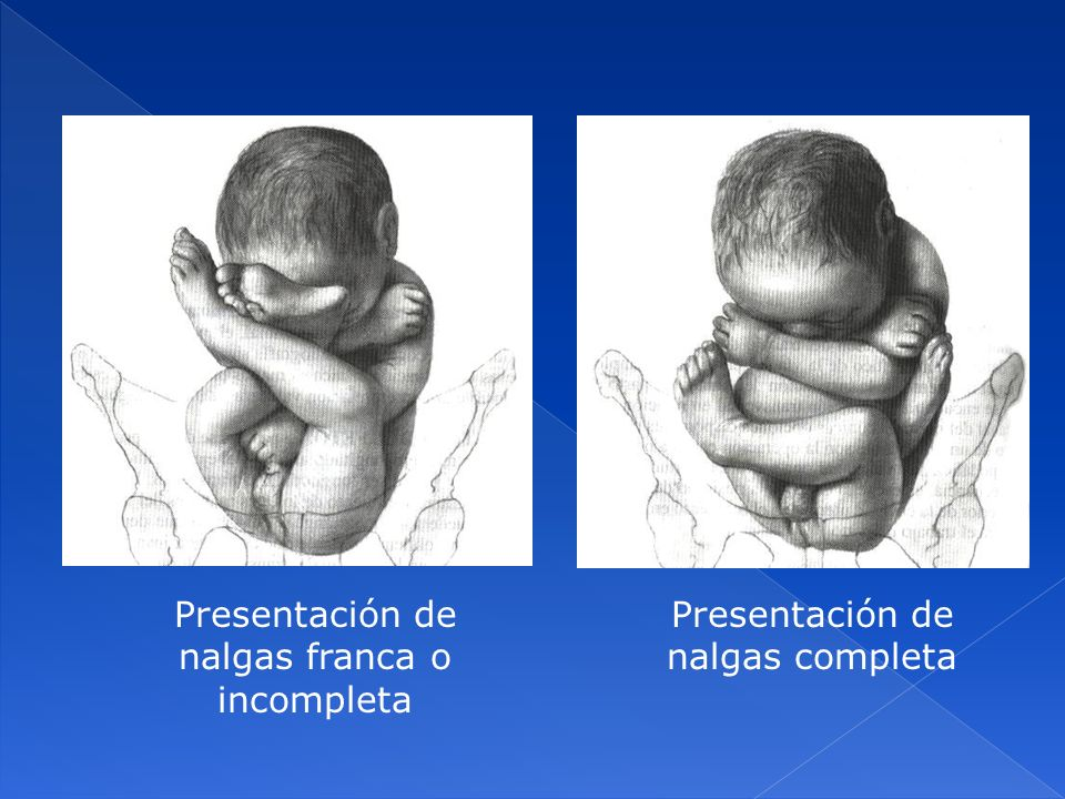 Presentación de nalgas franca o incompleta Presentación de nalgas completa