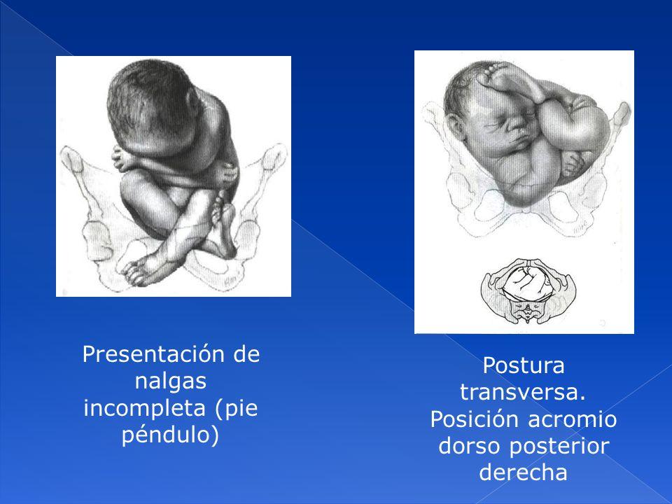 Presentación de nalgas incompleta (pie péndulo) Postura transversa. Posición acromio dorso posterior derecha