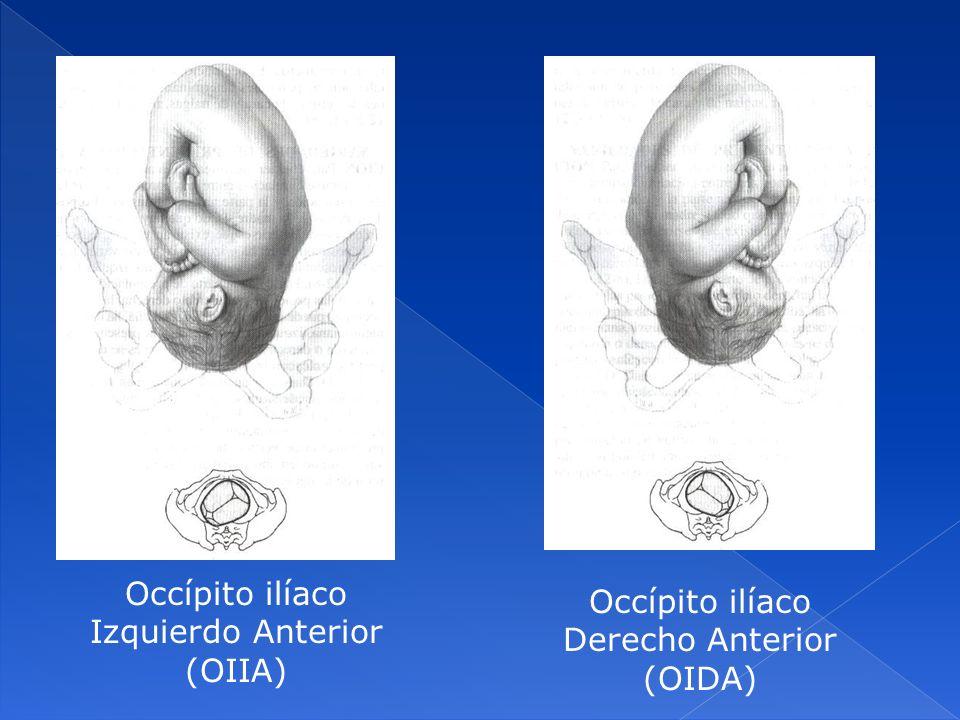 Occípito ilíaco Izquierdo Anterior (OIIA) Occípito ilíaco Derecho Anterior (OIDA)