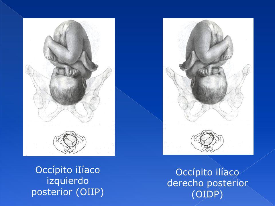 Occípito iIíaco izquierdo posterior (OIIP) Occípito ilíaco derecho posterior (OIDP)