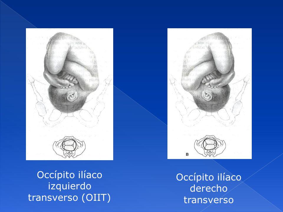 Occípito ilíaco izquierdo transverso (OIIT) Occípito ilíaco derecho transverso