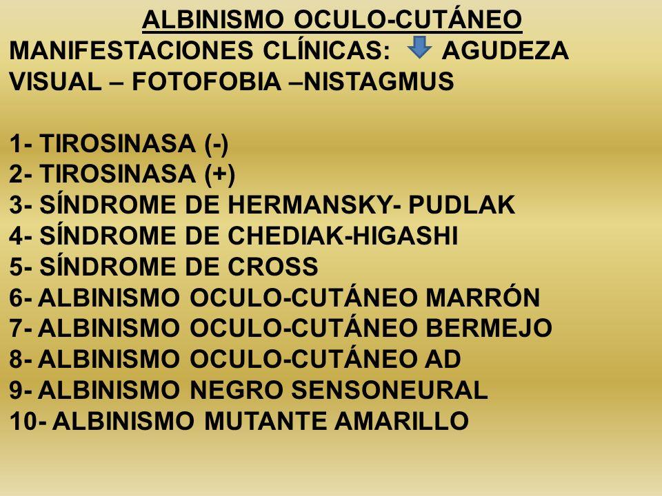 ALBINISMO OCULO-CUTÁNEO MANIFESTACIONES CLÍNICAS: AGUDEZA VISUAL – FOTOFOBIA –NISTAGMUS 1- TIROSINASA (-) 2- TIROSINASA (+) 3- SÍNDROME DE HERMANSKY-