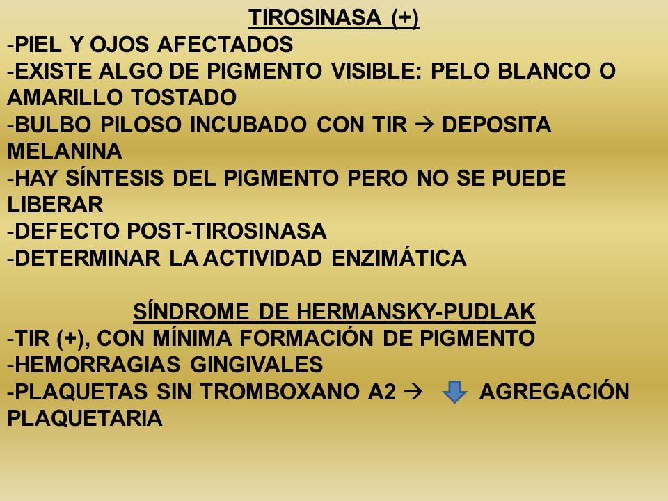 TIROSINASA (+) -PIEL Y OJOS AFECTADOS -EXISTE ALGO DE PIGMENTO VISIBLE: PELO BLANCO O AMARILLO TOSTADO -BULBO PILOSO INCUBADO CON TIR DEPOSITA MELANIN