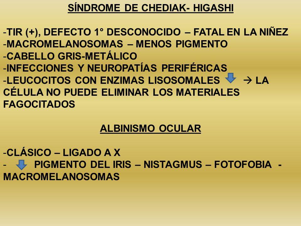 SÍNDROME DE CHEDIAK- HIGASHI -TIR (+), DEFECTO 1° DESCONOCIDO – FATAL EN LA NIÑEZ -MACROMELANOSOMAS – MENOS PIGMENTO -CABELLO GRIS-METÁLICO -INFECCION