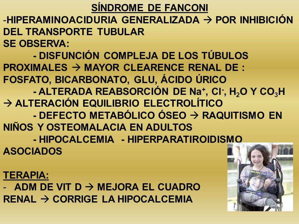 SÍNDROME DE FANCONI -HIPERAMINOACIDURIA GENERALIZADA POR INHIBICIÓN DEL TRANSPORTE TUBULAR SE OBSERVA: - DISFUNCIÓN COMPLEJA DE LOS TÚBULOS PROXIMALES