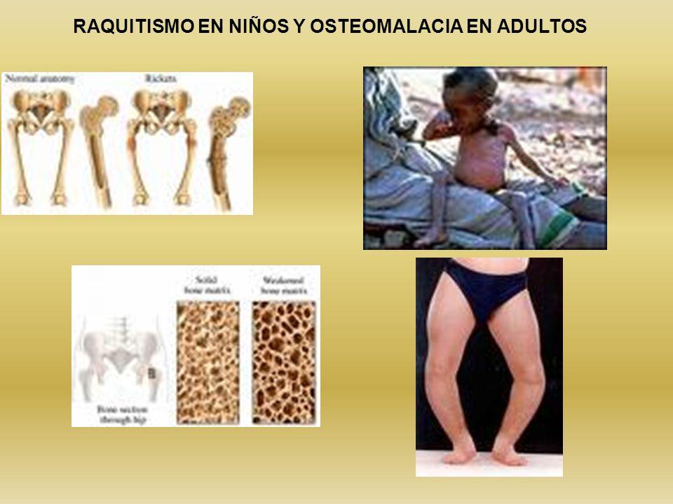RAQUITISMO EN NIÑOS Y OSTEOMALACIA EN ADULTOS