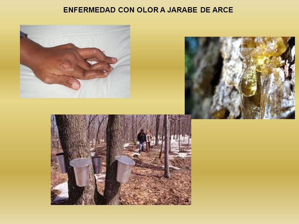 ENFERMEDAD CON OLOR A JARABE DE ARCE