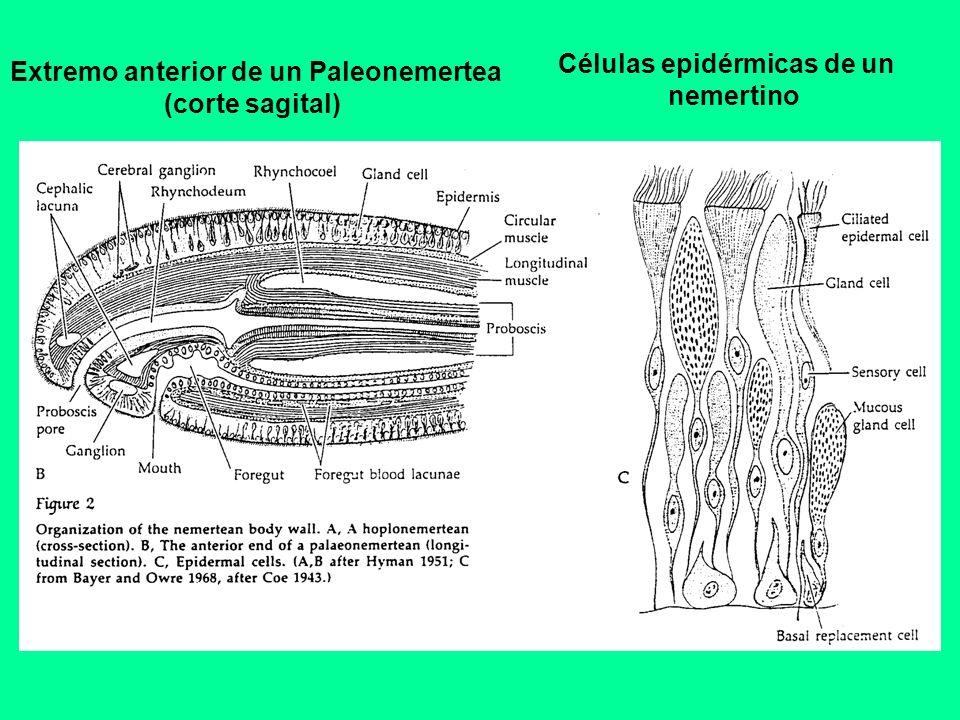 Extremo anterior de un Paleonemertea (corte sagital) Células epidérmicas de un nemertino