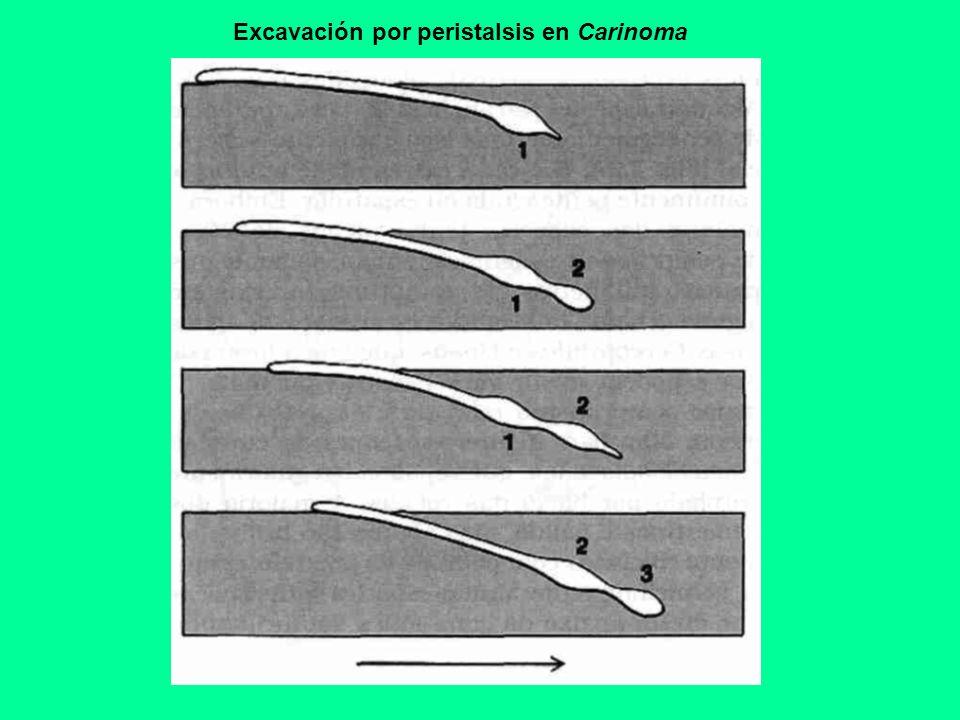 PROBOSCIDE EN NEMERTEA (ORDENES PALEONEMERTEA Y HETERONEMERTEA) B.