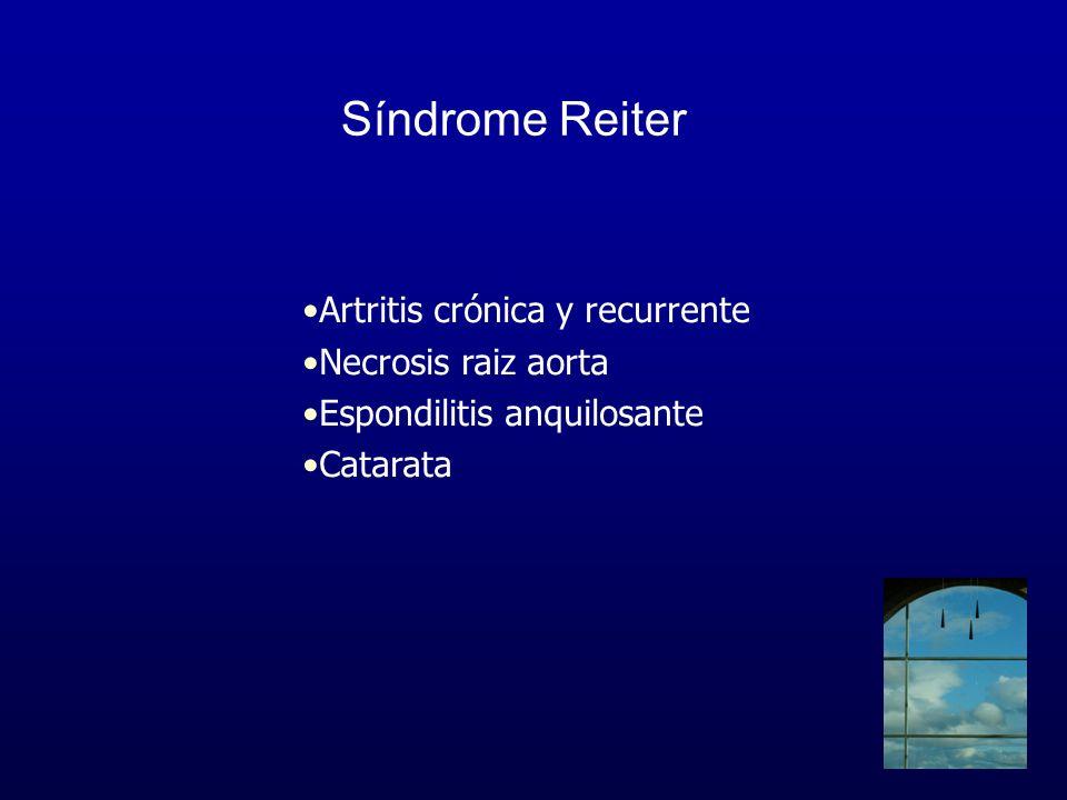 Síndrome Reiter Artritis crónica y recurrente Necrosis raiz aorta Espondilitis anquilosante Catarata