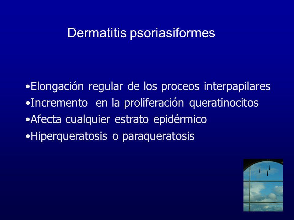Dermatitis psoriasiformes Elongación regular de los proceos interpapilares Incremento en la proliferación queratinocitos Afecta cualquier estrato epid