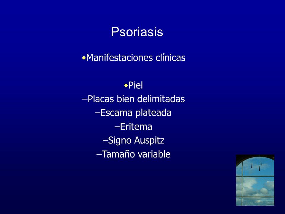 Psoriasis Manifestaciones clínicas Piel –Placas bien delimitadas –Escama plateada –Eritema –Signo Auspitz –Tamaño variable