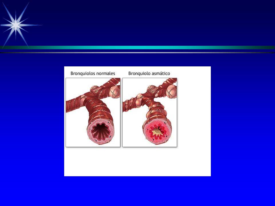MECANISMOS DE HRB.II ä Celulas cevadas (MASTOCITOS).