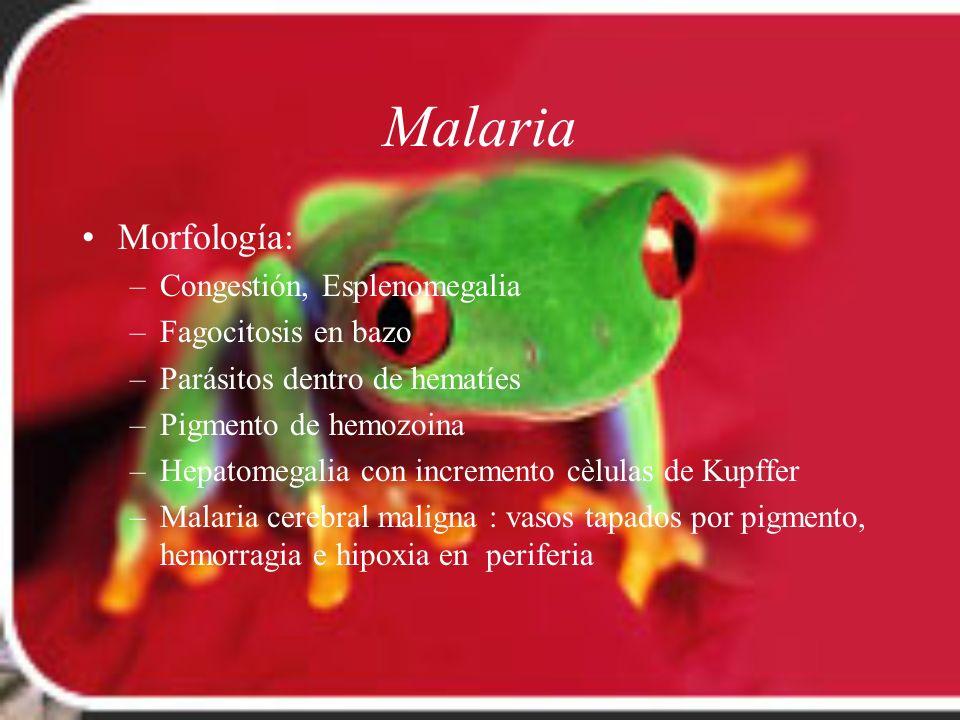 Malaria Morfología: –Congestión, Esplenomegalia –Fagocitosis en bazo –Parásitos dentro de hematíes –Pigmento de hemozoina –Hepatomegalia con increment